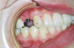 右上奥歯の欠損