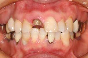 前歯の欠損