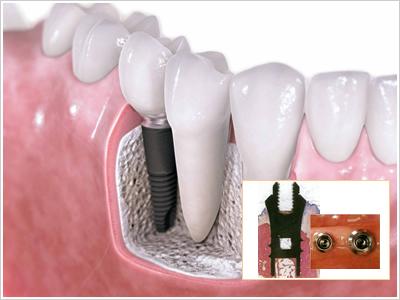 歯科用インプラントとは